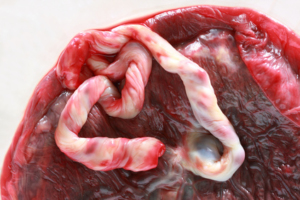 Close up of a fresh human placenta